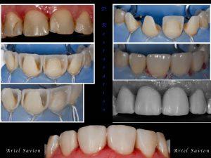 שחזורים אסתטיים בשיניים קדמיות