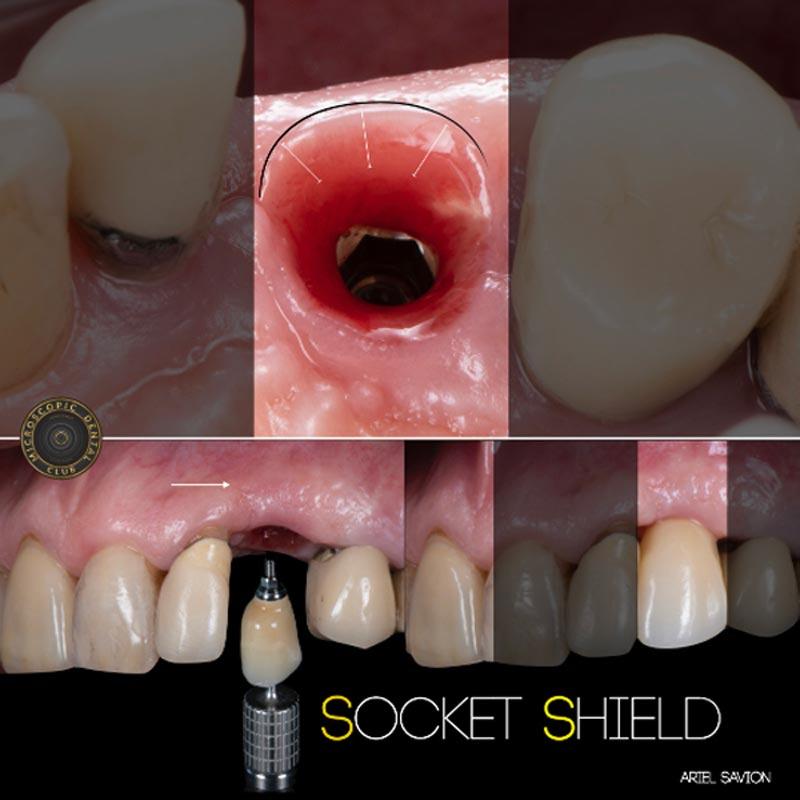 10 יתרונות להשתלת שיניים בלייזר-4