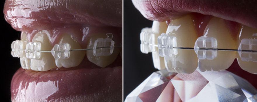 יישור שיניים קבוע
